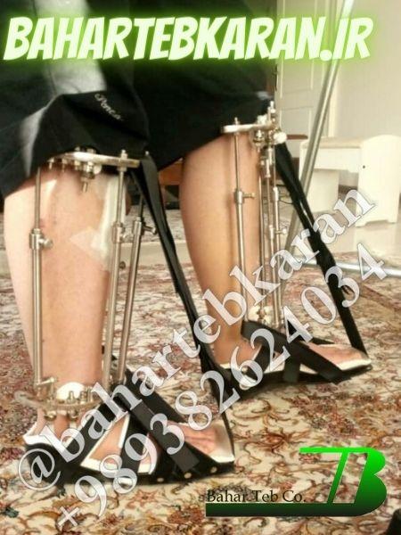 جراحی پای کوتاه