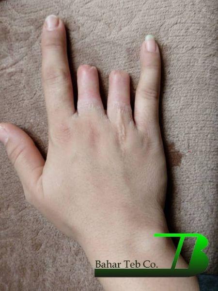 انگشت قطع شده