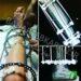 جراحی افزایش قد