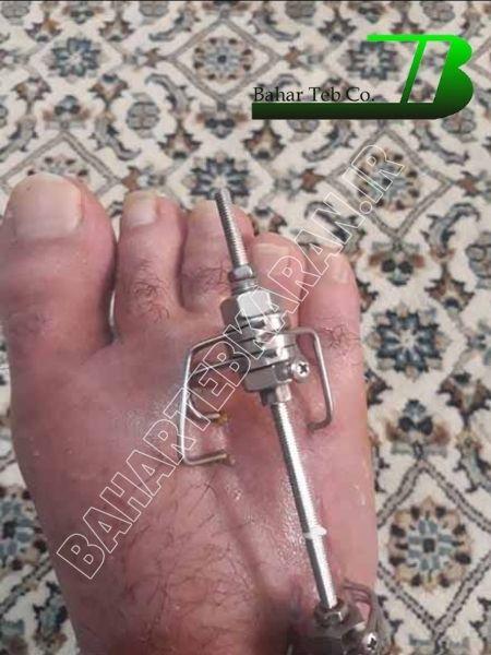 جراحی انگشت کوتاه پا