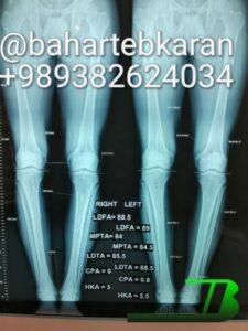 جراحی پاهای پرانتزی