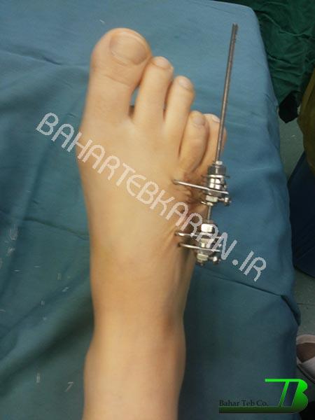 جراحی متاتارس
