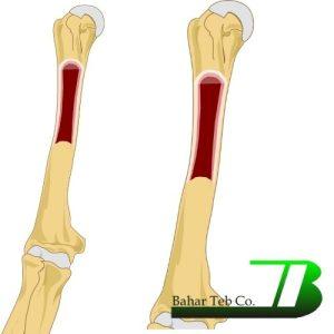 استخوان بازو